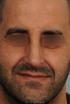 Rhinoplastie chez l'homme, bosse marquée, pointe de nez tombante vue de face apres