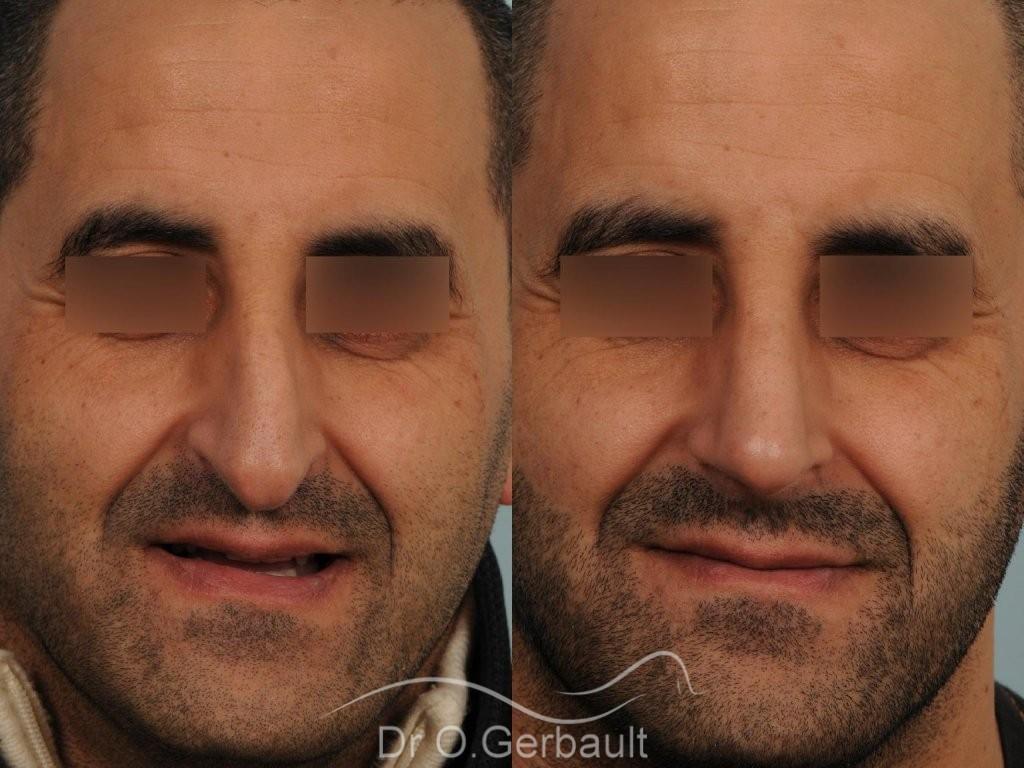 Rhinoplastie chez l'homme, bosse marquée, pointe de nez tombante vue de face avant-apres