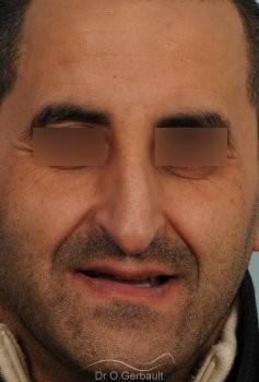 Rhinoplastie chez l'homme, bosse marquée, pointe de nez tombante vue de face avant