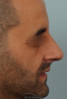 Rhinoplastie chez l'homme, bosse marquée, pointe de nez tombante vue de profil apres
