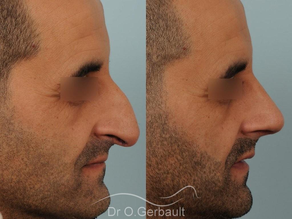 Rhinoplastie chez l'homme, bosse marquée, pointe de nez tombante vue de profil avant-apres