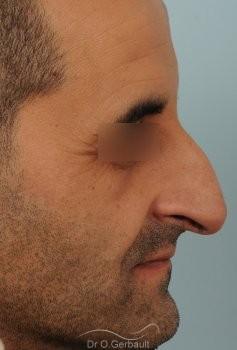Rhinoplastie chez l'homme, bosse marquée, pointe de nez tombante vue de profil avant