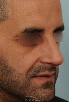 Rhinoplastie chez l'homme, bosse marquée, pointe de nez tombante vue de quart apres