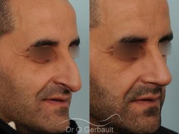 Rhinoplastie chez l'homme, bosse marquée, pointe de nez tombante vue de quart avant-apres