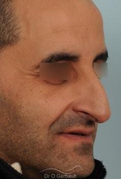 Rhinoplastie chez l'homme, bosse marquée, pointe de nez tombante vue de quart avant