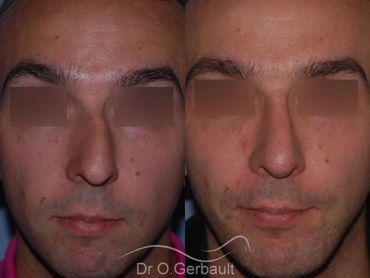 Rhinoplastie chez l'homme, et profiloplastie d'harmonisation vue de face duo