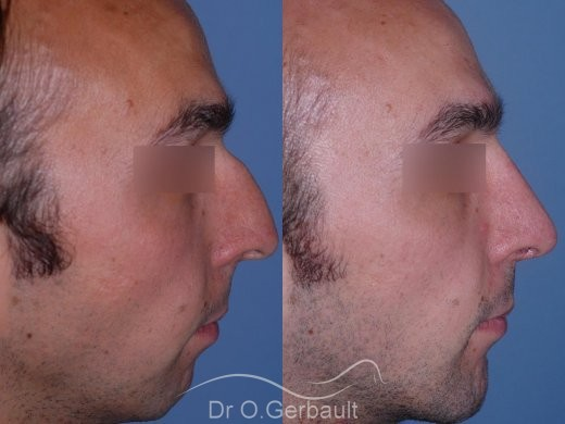 Rhinoplastie chez l'homme, et profiloplastie d'harmonisation vue de profil duo