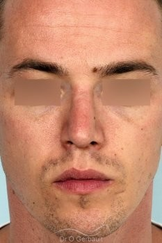 Rhinoplastie chez l'homme, réduction et affinement du nez vue de face apres