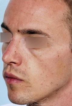 Rhinoplastie chez l'homme, réduction et affinement du nez vue de profil apres