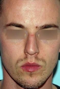 Rhinoplastie chez l'homme, réduction et affinement du nez vue de face avant