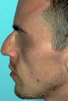 Rhinoplastie chez l'homme, réduction et affinement du nez vue de profil avant