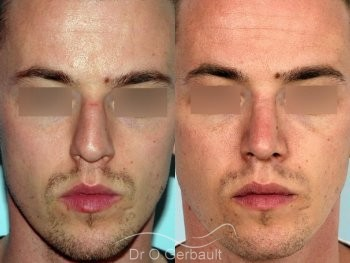 Rhinoplastie chez l'homme, réduction et affinement du nez vue de face duo