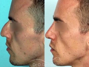 Rhinoplastie chez l'homme, réduction et affinement du nez vue de profil duo