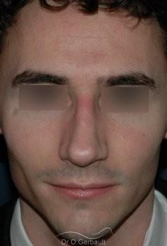 Rhinoplastie chez l'homme vue de face apres