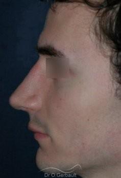 Rhinoplastie chez l'homme vue de profil apres