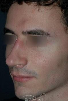 Rhinoplastie chez l'homme vue de quart apres