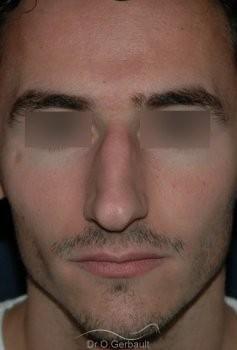 Rhinoplastie chez l'homme vue de face avant