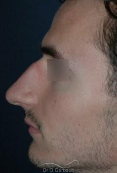 Rhinoplastie chez l'homme vue de profil avant