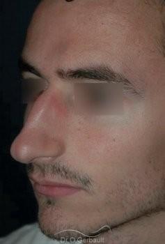 Rhinoplastie chez l'homme vue de quart avant
