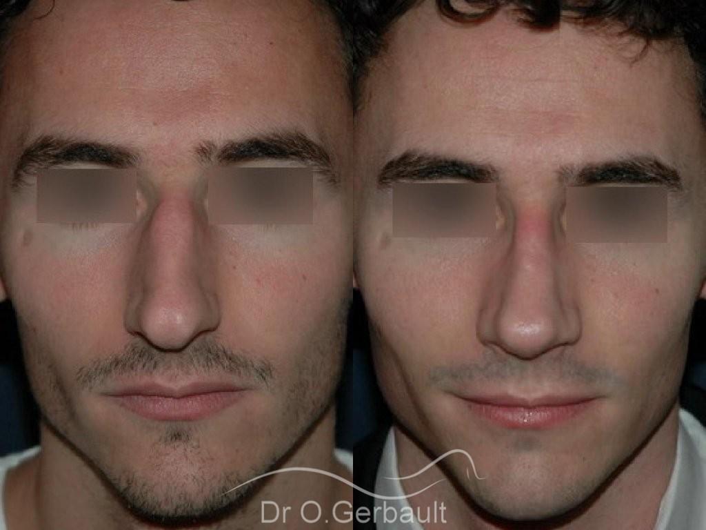 Rhinoplastie chez l'homme vue de face duo