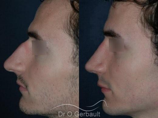 Rhinoplastie chez l'homme vue de profil duo