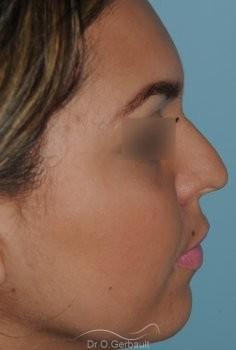 Rhinoplastie Ethnique, Bosse de nez vue de profil avant