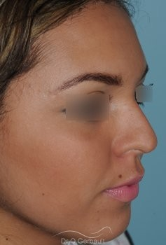 Rhinoplastie Ethnique, Bosse de nez vue de quart avant