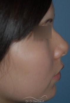 Rhinoplastie Ethnique Asiatique vue de profil avant