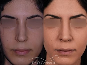Rhinoplastie ethnique secondaire vue de face duo