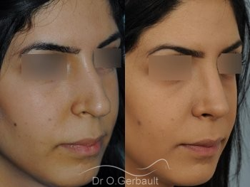 Rhinoplastie ethnique secondaire vue de quart duo