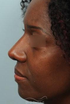 Rhinoplastie ethnique sur nez africain vue de profil apres