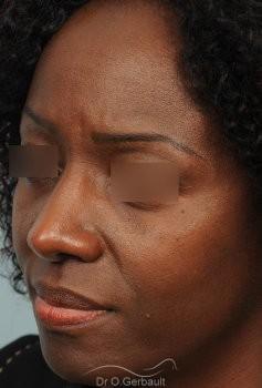 Rhinoplastie ethnique sur nez africain vue de quart apres