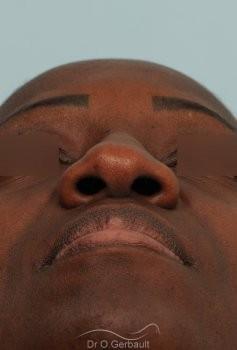 Rhinoplastie ethnique sur nez africain vue de face avant
