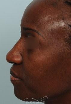 Rhinoplastie ethnique sur nez africain vue de profil avant