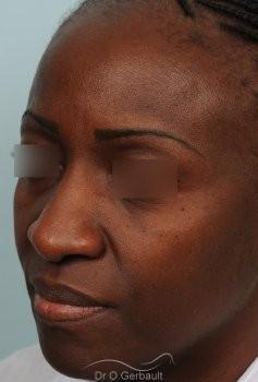 Rhinoplastie ethnique sur nez africain vue de quart avant