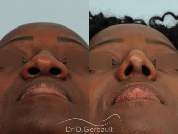 Rhinoplastie ethnique sur nez africain vue de face duo