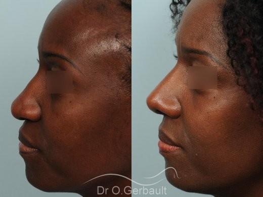 Rhinoplastie ethnique sur nez africain vue de profil duo