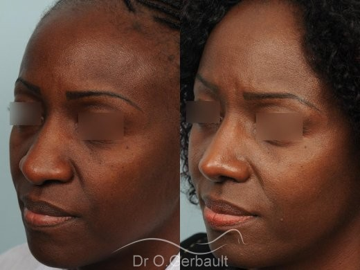 Rhinoplastie ethnique sur nez africain vue de quart duo