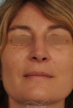 Rhinoplastie fonctionnelle, déviation de cloison vue de face apres
