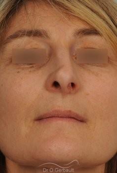 Rhinoplastie fonctionnelle, déviation de cloison vue de face avant