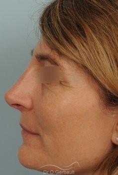 Rhinoplastie fonctionnelle, déviation de cloison vue de profil apres