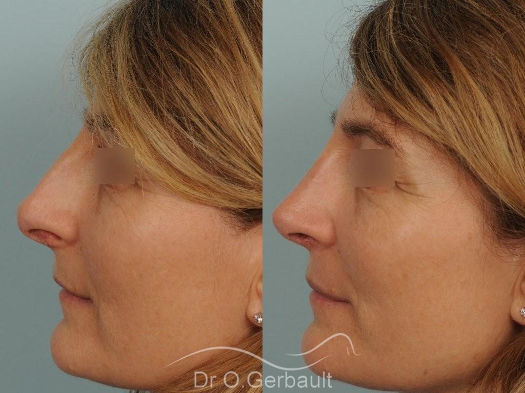 Rhinoplastie fonctionnelle, déviation de cloison vue de profil avant-apres