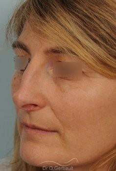 Rhinoplastie fonctionnelle, déviation de cloison vue de quart avant