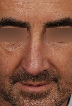 Rhinoplastie fonctionnelle vue de face apres