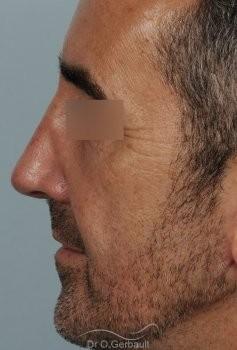 Rhinoplastie fonctionnelle vue de profil apres