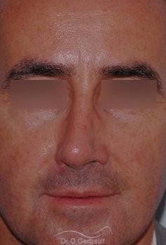 Rhinoplastie fonctionnelle vue de face avant