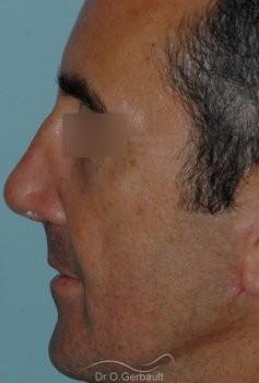 Rhinoplastie fonctionnelle vue de profil avant