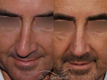 Rhinoplastie fonctionnelle vue de face duo