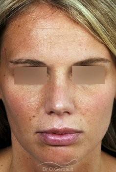 Rhinoplastie primaire, Pointe de nez large vue de face apres