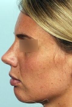 Rhinoplastie primaire, Pointe de nez large vue de profil apres